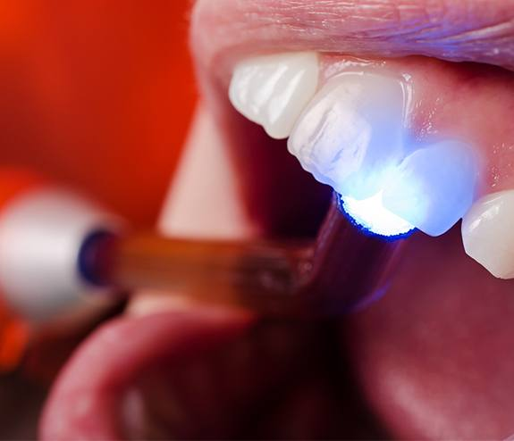 Dentist performing dental bonding treatment