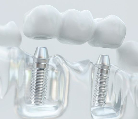 Model dental implant supported fixed bridge