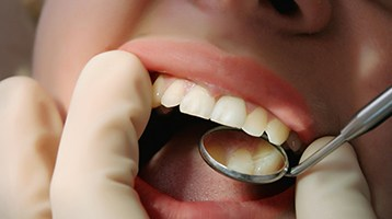 Person with dental implants in Longmont receiving dental exam