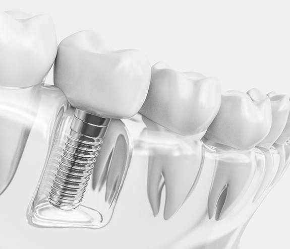 Diagram of a dental implant in Longmont inside a model