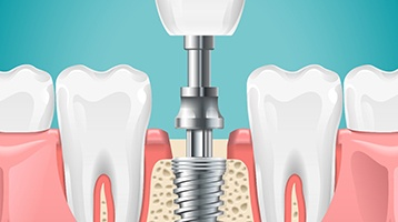 Diagram highlighting the components of a dental implant in Longmont