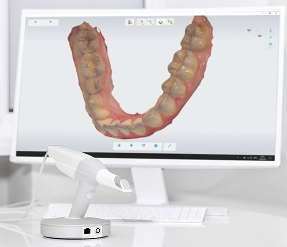 Intraoral smile images on chairside computer