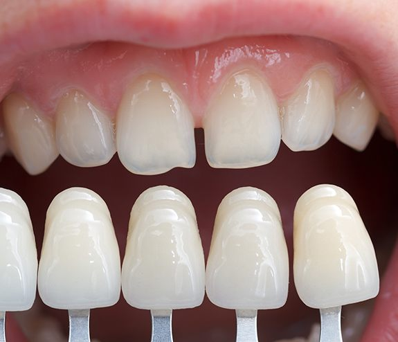 Closeup of smile during porcelain veneer treatment planning