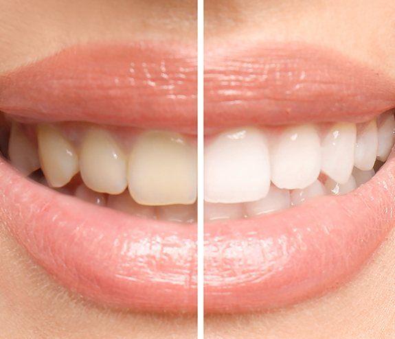 Teeth Whitening Longmont, CO | Cosmetic Dentist | Longmont ...