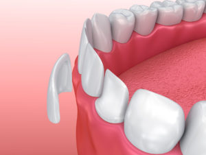 How can you close the noticeable gap in your smile without braces? Porcelain veneers in Longmont are a great solution.