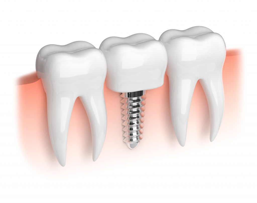 An image of a dental implant.