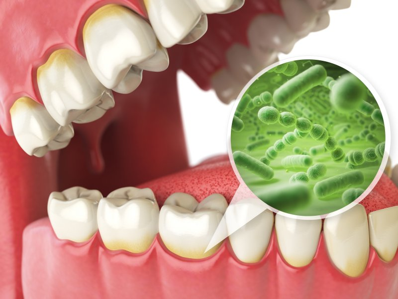 an image of bacteria found in gum disease